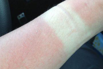 登山後の日焼けの痛み