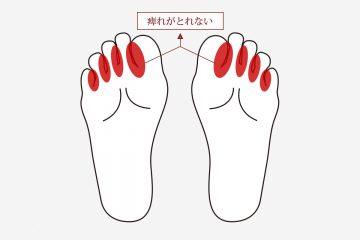 足の指の痺れがとれないモートン病